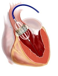 Transcatheter Aortic Valve Replacement (TAVR) device inserted via catheter