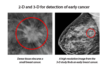 2-D and 3-D for detection of early cancer